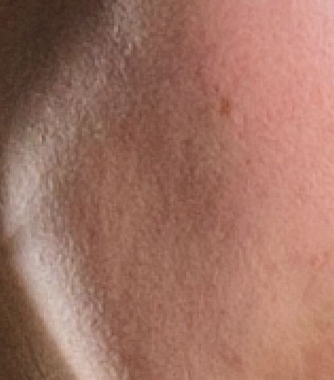 skin softening4